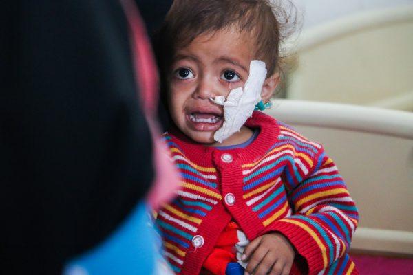 03-27-2017-UNICEF-Yemen