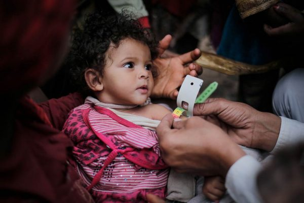 Yemen_UNICEF_2017